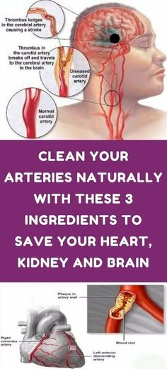 How to clean out plaque in arteries - 3 ingredients mixture