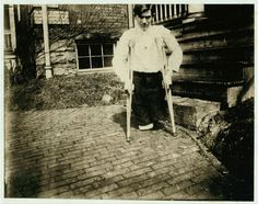 Frank P., whose legs were cut off by a motor car in a coal mine in West Virginia when he was 14 years 10 months of age. 1910 THe Library of Congress West Virginia History, Virginia Usa, Lewis Hine, Labor Law, Coal Miners, Industrial Revolution, Boy Photos, Working Class, Working With Children