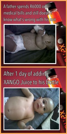 Baby skin condition and mangosteen Medical Billing, Whats Wrong, Baby Skin, Health Care, Juice, Conditioner, Ads, Juices, Juicing