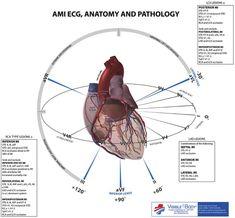 EKG Anatomy and Pathology Nursing Tips, Nursing Notes, Ekg Interpretation, Ecg, Heart Anatomy, Critical Care Nursing, Cardiac Nursing, Emergency Medicine, Emergency Care