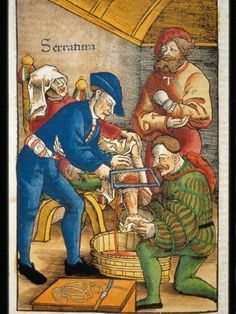 "Feldbüch der Wundartzney (1497) by Hans von Gersdorff  In the illustration by the famous German surgeon Hans von Gersdorff (ca 1480-1540), note that the physician was using his left hand as a tourniquet to both reduce bleeding, and to compress the nerves for pain control. The man on the right of the illustration was wearing a ""T,"" likely indicating that he suffered from St. Anthony's Fire, which was probably erysipelas, a Group A streptococcal infection common at the time"