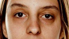 rosto olheiras sobrancelha olheira 07.17 400x800
