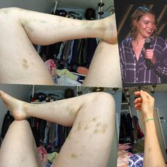 Same girl in all of these photos (me). I've had an amazing year and you've seen the highlights here so these photos are an uncommon thing to share but not an uncommon issue. You may be weirded out but do read on. I have a point. There are many reasons not to make an abusive relationship public mostly fear. Scared of what people will think scared it makes me look weak or unprofessional. When I broke up with my ex this summer it wasn't because I didn't love him it was because of this. And I…