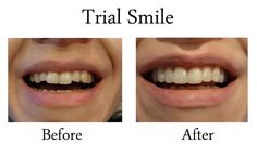Here is a perfect example of how much your smile can change If you have ever thought about changing your smile and what you'd look like with 'new' teeth? Give us a call at 9543 6666 and let's organize a mock up; A Mock up/Trial smile is a 15 minute appointment where Dr W Zafiropoulos puts a material on your teeth to show you what can be achieved the mock up gives you the chance the think about your smile and the huge impact it has to your face. You have the chance to show your friends and…