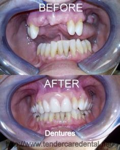 Very detailed and description of what it is like to get dentures. Really good information