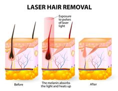 How long does laser hair removal last Laser hair removal is a long-lasting form of hair removal that damages or destroys the hair follicle. However the hair may regrow particularly if the follicle is damaged and not destroyed during the laser. Best Laser Hair Removal, Permanent Laser Hair Removal, Laser Hair Removal Treatment, At Home Hair Removal, Facial Treatment, Laser Removal, Skin Treatments, Facial Therapy, Living Room