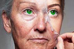 Remova qualquer cicatriz do seu corpo em um mês | RECEITA FENOMENAL