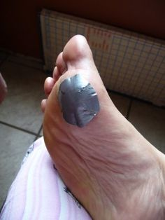 16 Best Molluscum and Warts images in 2015 | Warts, Warts remedy