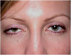 Ptosis caused by myasthenia gravis, damage to oculomotor nerve, interference with sympathetic nerves (Horner's syndrome)  examination of the eye flashcards   Quizlet