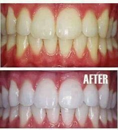 Home made tooth whitener