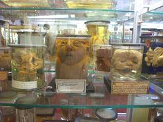 Musée Dupuytren. Paris. 29 juin 2012. Musée d'anatomie pathologique.  http://www.upmc.fr/fr/culture/patrimoine/patrimoine_scientifique/musee_dupuytren.html