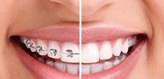 Các loại niềng răng và chi phí từng loại – Bảng giá mới nhất