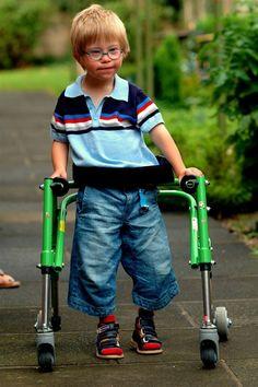 niño paralisis cerebral - Buscar con Google
