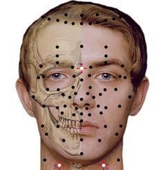 Punkty stymulacji metodą elektropunktury i akupunktury dla schorzenia…