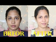 How to Remove Sun Tan From Your Face Quickly - 1 tbsp Gram Flour, 1 tbsp Milk Powder, tbsp Honey, tbsp Lemon Juice, 2 tbsp Liquid Milk Health Clear Skin Health Remedies Health Tips Health For women Health Natural Health Tips How To Remove Sunburn, Remove Tan From Face, Sun Tan Removal, Hair Removal, Clear Skin Tips, Lighten Skin, Younger Skin, Unwanted Hair, Naturaleza