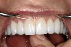 Der richtige Gebrauch der Zahnseide
