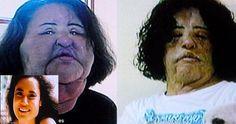 20 Crazy Plastic Surgery Fails