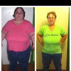 Yesterday was my one year surgiversary of my RNY gastric bypass. 110 lbs down and counting. What a difference!