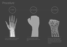 The Cortex exoskeletal cast provides a highly technical and trauma zone localized support system that is fully ventilated, super light, shower friendly, hygienic, recyclable and stylish.  The cortex cast utilizes the x-ray and 3d scan of a patient with a fracture and generates a 3d model in relation to the point of fracture.