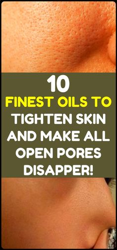 The Top 10 Essential Oils For Skin Care - tighten skin and make all open pores disappear! The Top 10 Essential Oils For Skin Care - tighten skin and make all open pores disappear! Beauty Care, Beauty Hacks, Diy Beauty, Beauty Buy, Face Beauty, Beauty Ideas, Beauty Secrets, Goji, Essential Oils For Skin