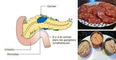 L'American Institute for Cancer affirme sur son site Web, « La recherche a montré que la plupart des cancers peuvent être évités. Les scientifiques estiment maintenant que 60 à 70 % des cancers sont évitables grâce à des informations actuellement disponibles et de simples changements dans le régime alimentaire et le mode de vie. » Avec cette …
