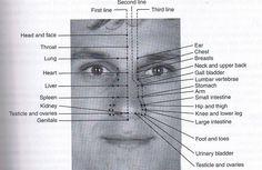 Nose acupuncture