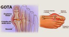 7 remedios naturales que ayudan a eliminar el ácido úrico que causa la artritis   ConSalud.info