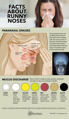 Diagram of sinuses and chart of mucus colors.