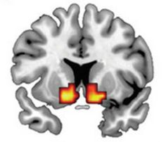 "People who scored high on a test that measures impulsive and antisocial traits had exaggerated brain responses to certain ""rewards,"" like winning money or taking stimulant drugs. The new study provides evidence that a dysfunctional brain reward system may underlie vulnerability to a personality disorder known as psychopathy.   Impulsive and antisocial personality traits correlate with amphetamine-induced dopamine release (red and yellow) in the brain. Image by Buckholtz et al. Psychopathy is…"