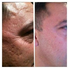 Do you know some with this type of skin problems? help them by telling them about NeriumAD 985.264.2489
