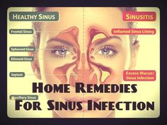 10 Natural And Herbal Remedies for Sinusitis!   This is the time of the year for sinusitis  that throbbing headache and all the other miserable symptoms that come with it . What is sinusitis, what causes it and some natural and herbal remedies that  really work. READ MORE @ www.organic4greenlivings.com
