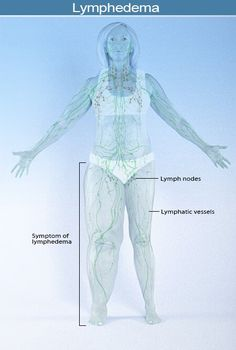 Learn what causes lymphedema including other diseases, disease treatments and surgeries, and parasitic infections. Lymphedema symptoms include swelling of the limbs, cracked and thickening skin, and bacterial or fungal infections. Lymph Fluid, Lymphatic Drainage Massage, Red Light Therapy, Weight Loss Blogs, Lymphatic System, Head And Neck, Health Articles, Lose Belly Fat