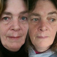 Skin Looking Tired And Limp? Take A Look At These Facial Rejuvenation Techniques To Obtain A Peachy, Gorgeous Skin