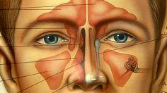 Aparece comúnmente después de un refriado prolongado o un proceso alérgico. - Noticias