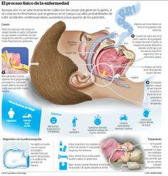 La apnea del sueño  Es un trastorno frecuente del sueño que se caracteriza por breves interrupciones de la respiración durante el sueño. Estos episodios por lo general duran 10 segundos o más y se presentan de forma repetitiva a lo largo de la noche. Las personas afectadas por la apnea del sueño se despiertan parcialmente en su lucha por respirar, pero por la mañana no estarán conscientes de la perturbación de su sueño.