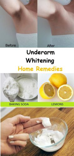 Try these home remedies to get rid of dark underarms – Surreal Dream