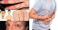 Hígado problemático: sepa cuáles son los 15 síntomas más importantes - e-Consejos