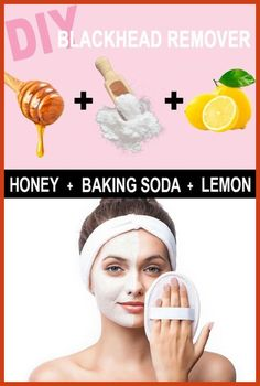 Acne Scar Removal - Acne Scar Removal at Home Remedies - Healthy Ways to Manage Scarring * More details can be found by clicking on the image. #BackAcneTreatment