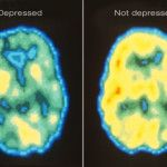 """Here's a PET scan of a depressed vs non depressed person. A little visual aide for those """"pick yourself up by your bootstraps"""" people."""