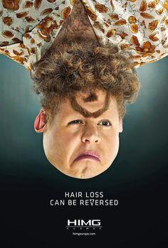 El espejo lúdico: La caída de pelo tiene vuelta atrás