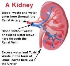 end stage renal disease - Google Search