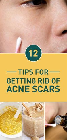 Anyone who had to deal with acne knows how difficult it can be to truly banish it. Even if you've found a cream or a mask that's right for you established a skincare regimen changed your dietary as well as sleeping habits and finally got rid or at least reduced your acne the problems don't end here. Acne scars can in fact be even more annoying to deal with than acne. Sure they fade away most of the time but that takes awhile and in the meantime having red blemishes on your skin can seriously…