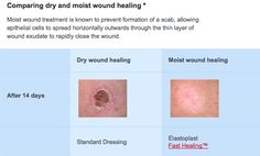 Which will heal faster, a cut which is covered or uncovered? - Quora