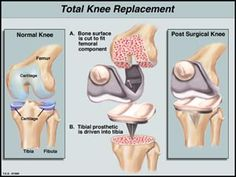 Vital Signs: New approach to total knee replacement spares muscle, decreases pain