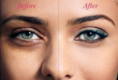 How to Conceal Dark Undereye Circles Lol, I like the BEFORE! So much more dramatic!
