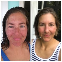 My Journey With Melasma And A Natural Approach To Clear Skin - Skin Care Home Remedies For Warts, Cold Home Remedies, Skin Care Remedies, Natural Health Remedies, Herbal Remedies, Natural Treatments, Skin Treatments, Ravintsara, Beauty