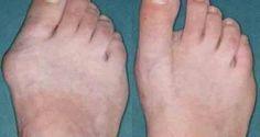 Débarrassez-vous de cette déformation osseuse en 10 jours. Comment se débarrasser d'un oignon de pied ?
