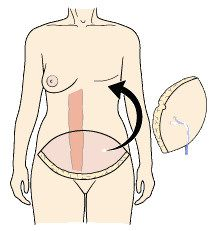 DIEP Flap Breast Reconstruction. We repinned this simple diagram, but Deep Inferior Epigastric Perforator Free Flap (DIEP)  What I had done