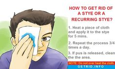 Recurring Stye - Causes, treatment, home remedies & cure