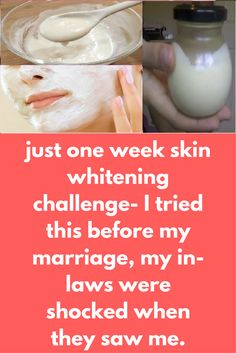 just one week skin whitening challenge- I tried this before my marriage, my in-laws were shocked when they saw me. I get so many queries for skin whitening problem so today I am going to share my natural skin whitening remedy which can be used for the dar Natural Skin Whitening, Whitening Face, Natural Skin Care, Whitening Soap, Natural Makeup, Natural Glow, Natural Beauty, Beauty Tips For Skin, Skin Care Tips